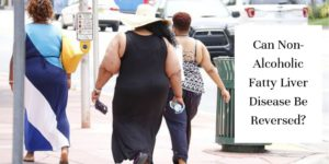 fat people walking
