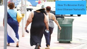 How To Reverse Fatty Liver Disease Naturally - Fat People Walking