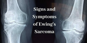 Signs And Symptoms Of Ewing's Sarcoma - Picture Of Bones